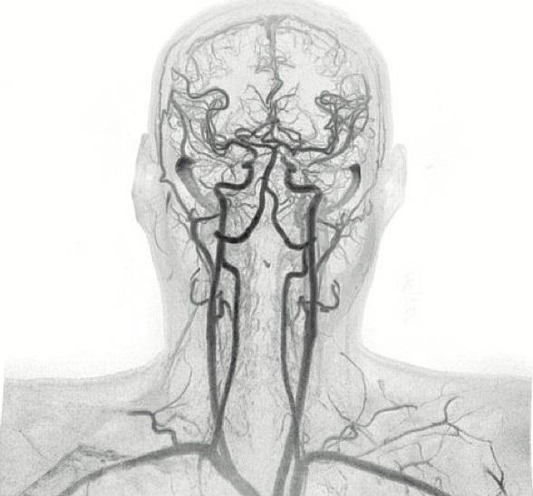 Все о контрастирующем веществе при МРТ