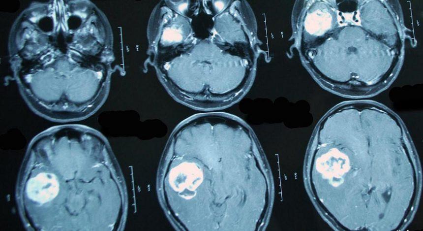 Разрушение мифов о мозге