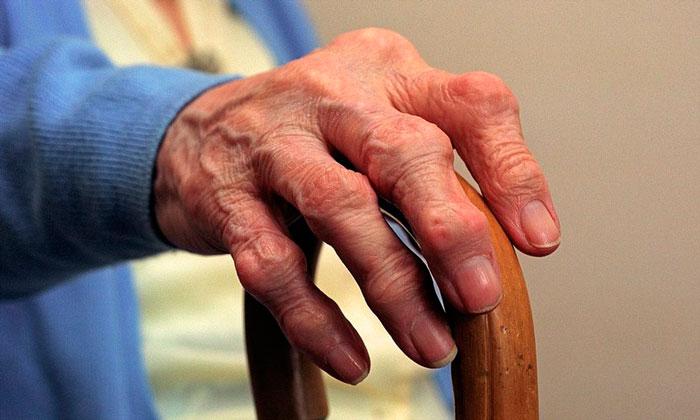 МРТ в диагностике ревматоидного артрита