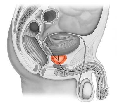 Роль МРТ В исследовании предстательной железы