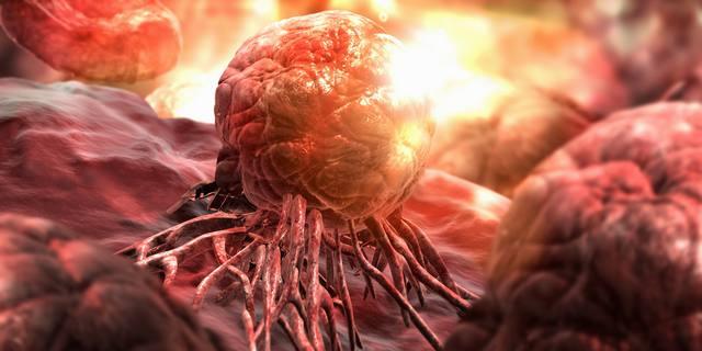 Пять причин онкологических заболеваний и методы их раннего диагностирования