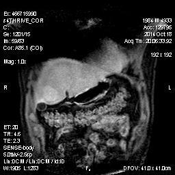 Рис.4 МРТ диагностика печени