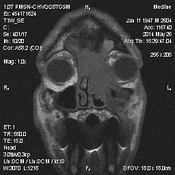 Рис.1 МР-картинка образования опухоли около орбит