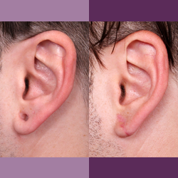 Before and After of Earlobe Repair