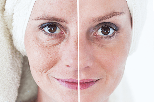 Aging Skin, Consequences of Aging