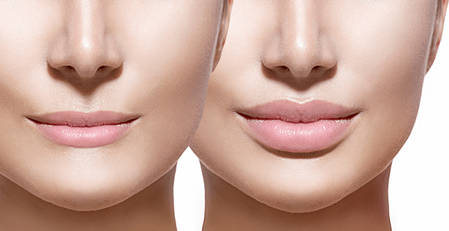 Facial Implants, Facial Fillers for Lips