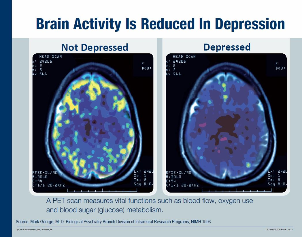 Side-by-side images of a PET scan shows areas of the brain lighting up in a non-depressed brain, then a depressed brain with much less light