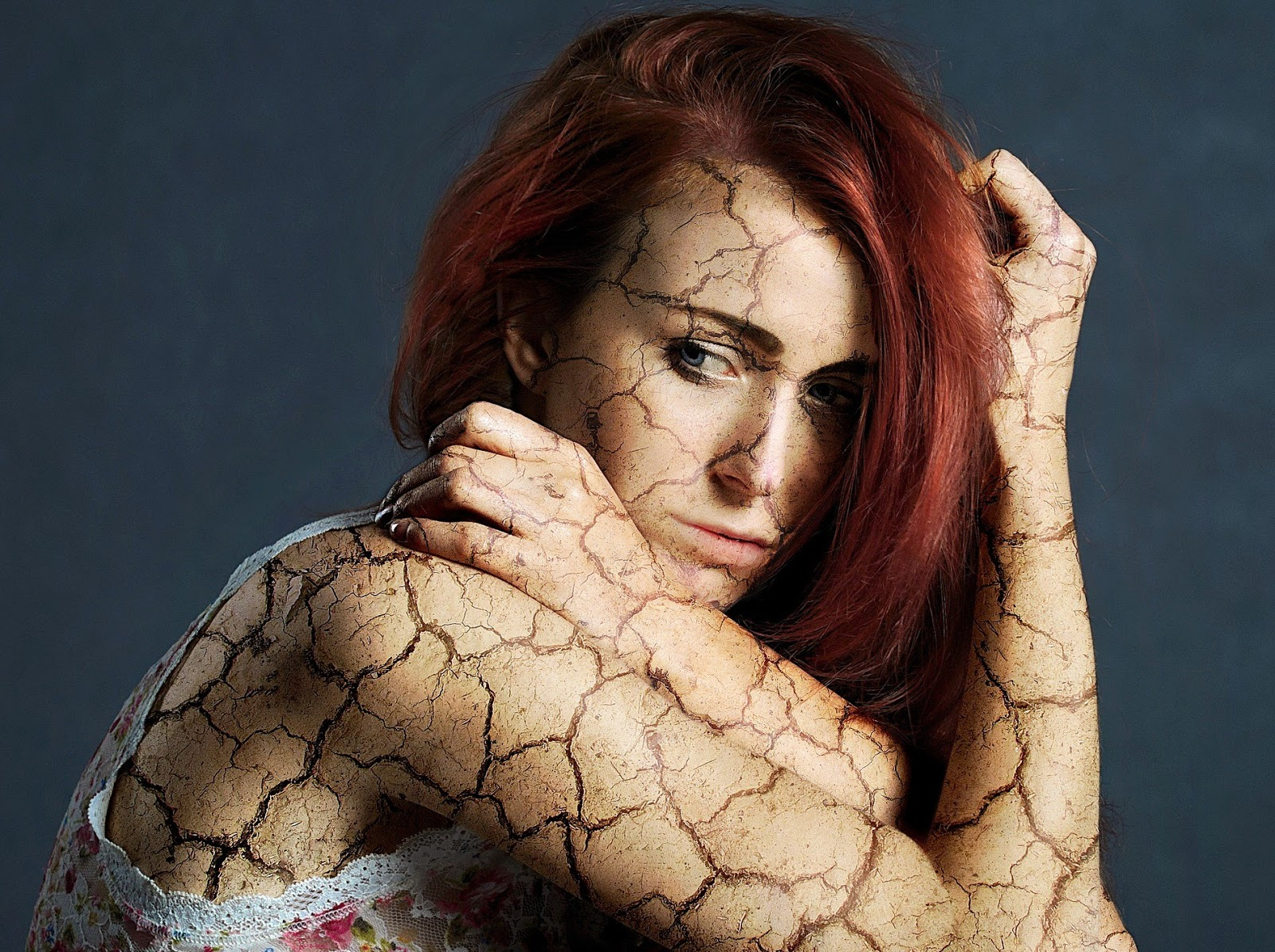 A woman with cracks on her skin