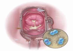 Bệnh lậu ở nữ giới có triệu chứng như thế nào, cách điều trị hiệu quả
