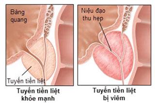 Viêm tuyến tiền liệt: nguyên nhân, biểu hiện và cách chữa