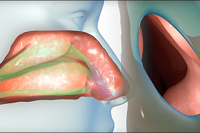 Nasal Obstruction Problems