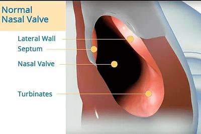 Normal Nasal Valve