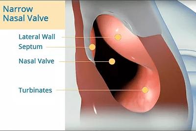 Narrow Nasal Valve