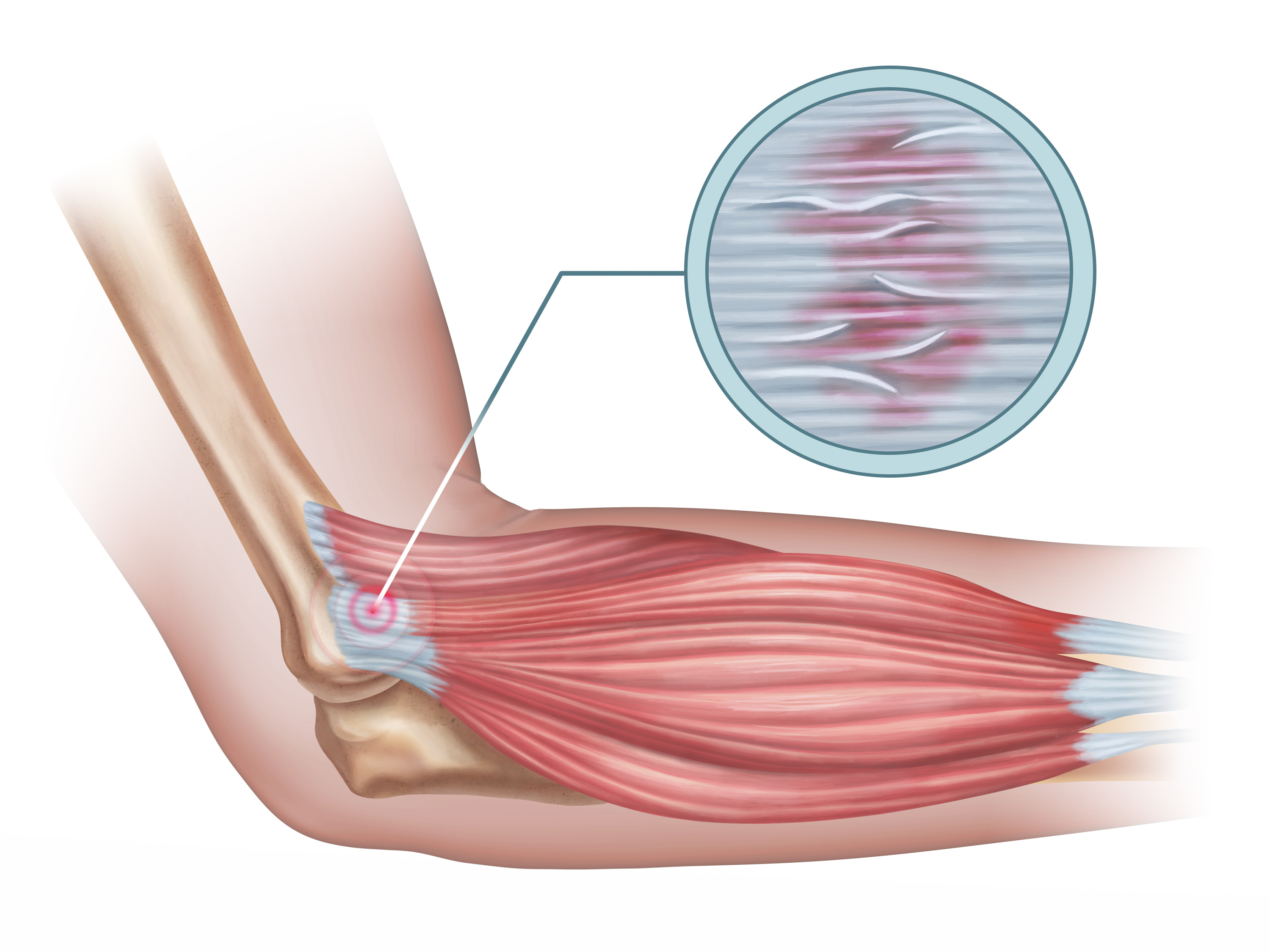 Nurokor treats tennis elbow naturally