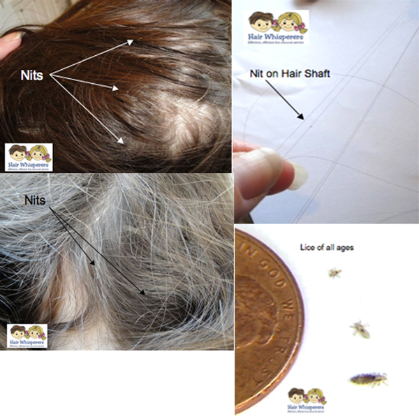 diagrams showing lice nits on hair
