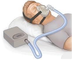 CPAP Sleep Apnea Services