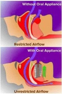 Provent Nasal Valve Treatment