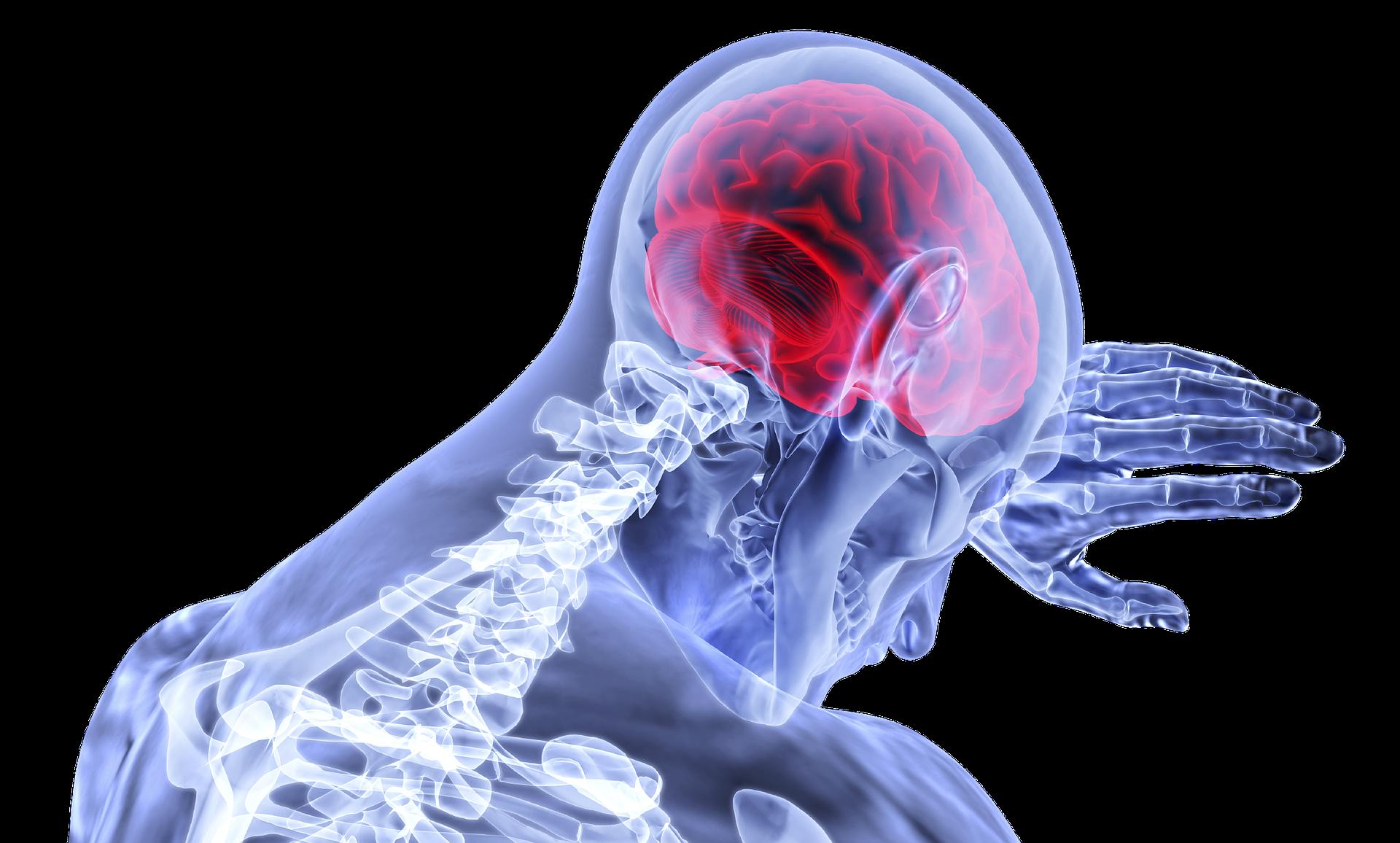 Mal de tête, Migraine, Ostéopathe Marseille 13013 - Tiphanie Cazeaux