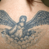 Theresa M. - Tattoo Removal Patient