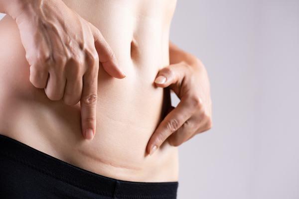 Endometriose Kinderwunsch Schwangerschaft
