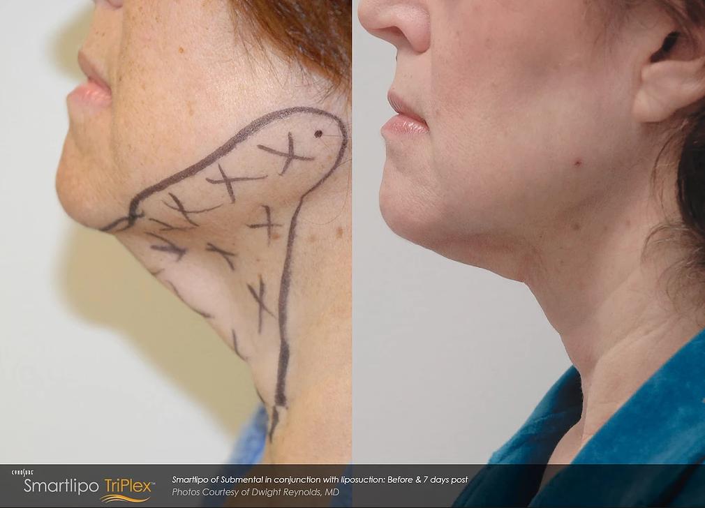 smartlipo laser liposuction
