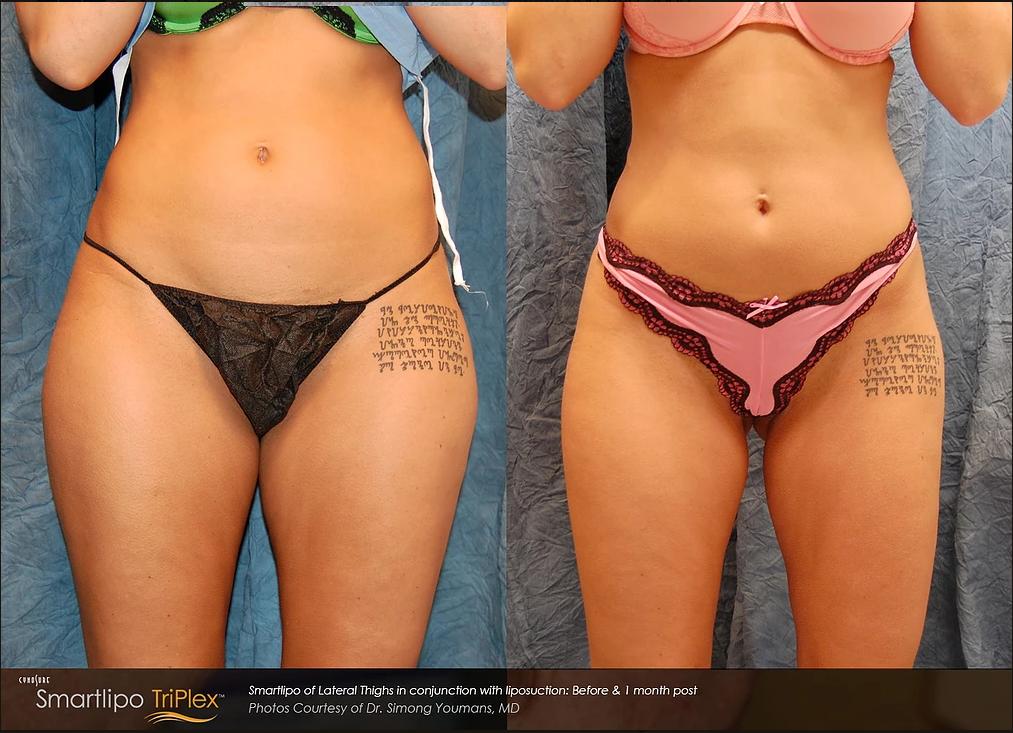 smart liposuction