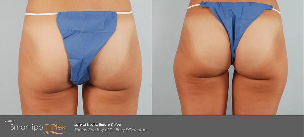 smart lipo laser liposuction