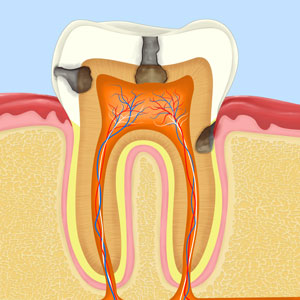 root canal treatment deep cavity in tooth