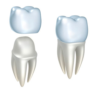 Dental crown procedure image