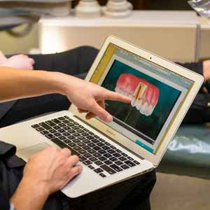 digital image of dental crown