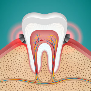tooth ache with sensitive tooth pain