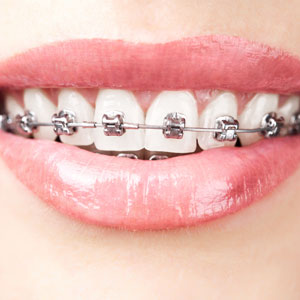 traditional braces orthodontics