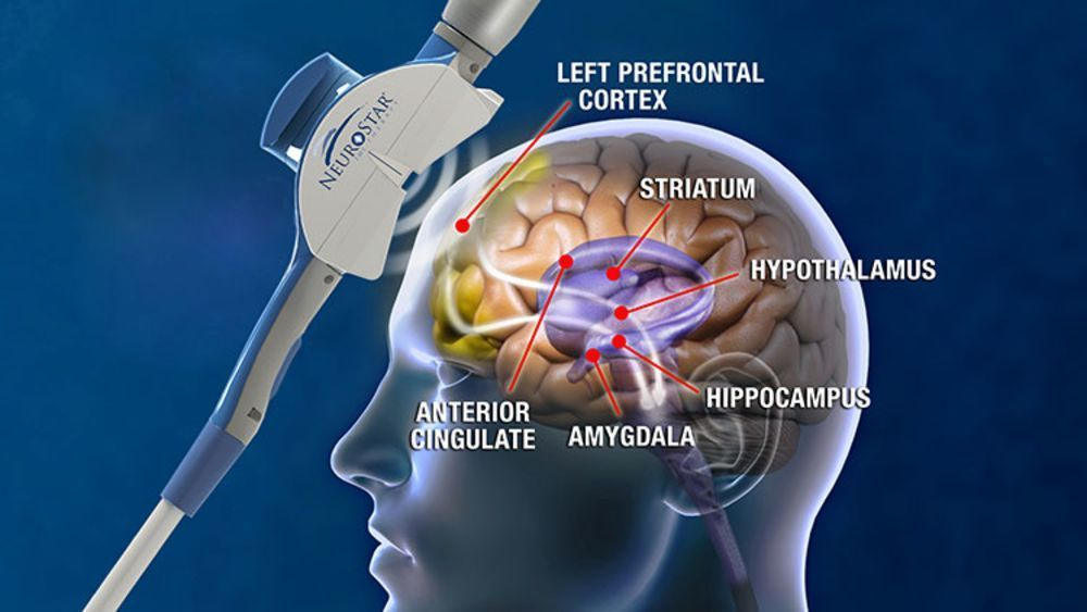 diagram of brain areas with NeuroStar tms device