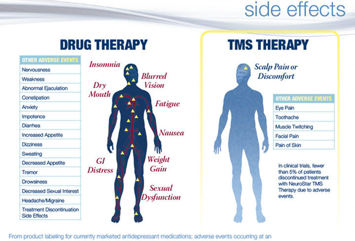 Comparing the side effects of antidepressants to the side effects of TMS