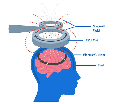 how tms works