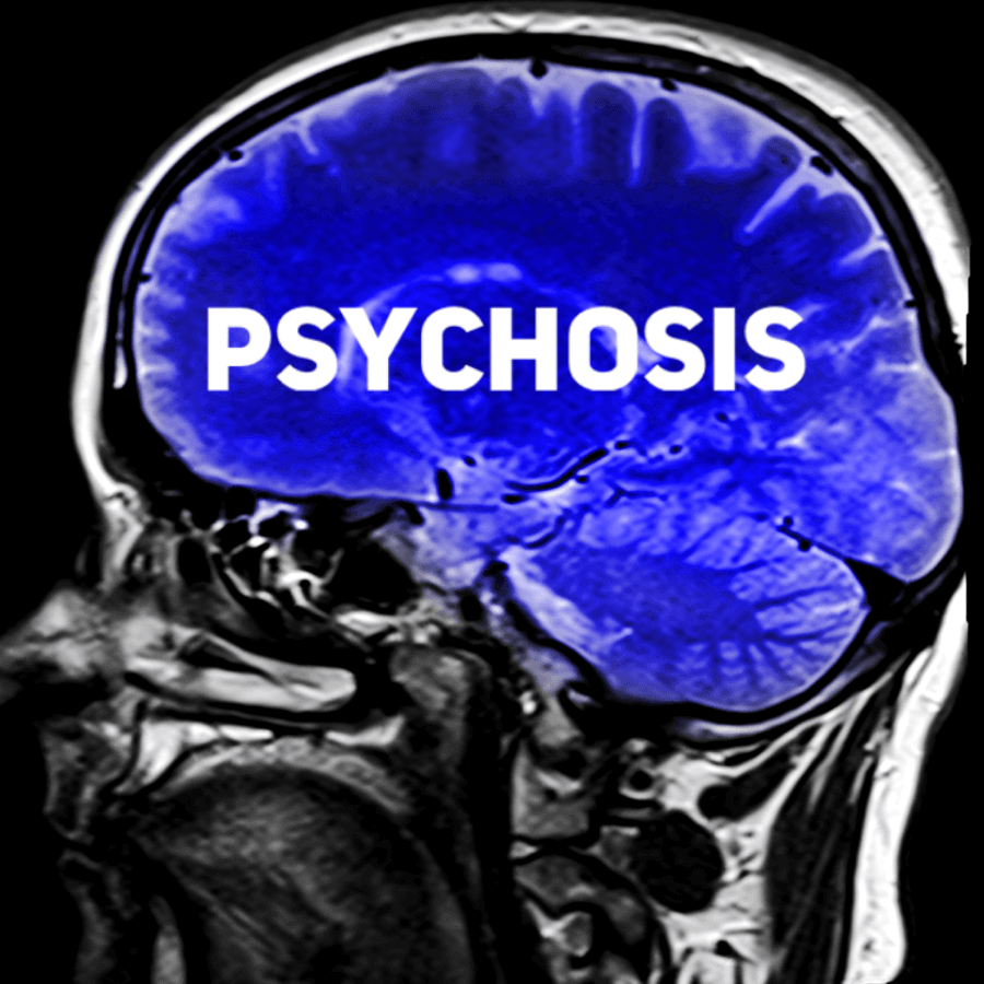 psychosis brain