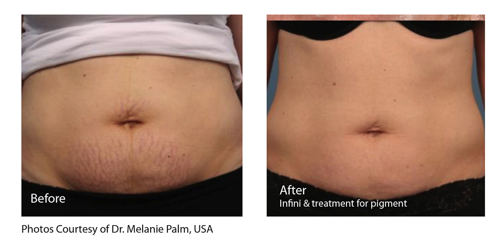 Image result for infini lutronic stretch marks
