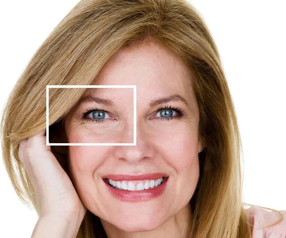 under eye lines botox