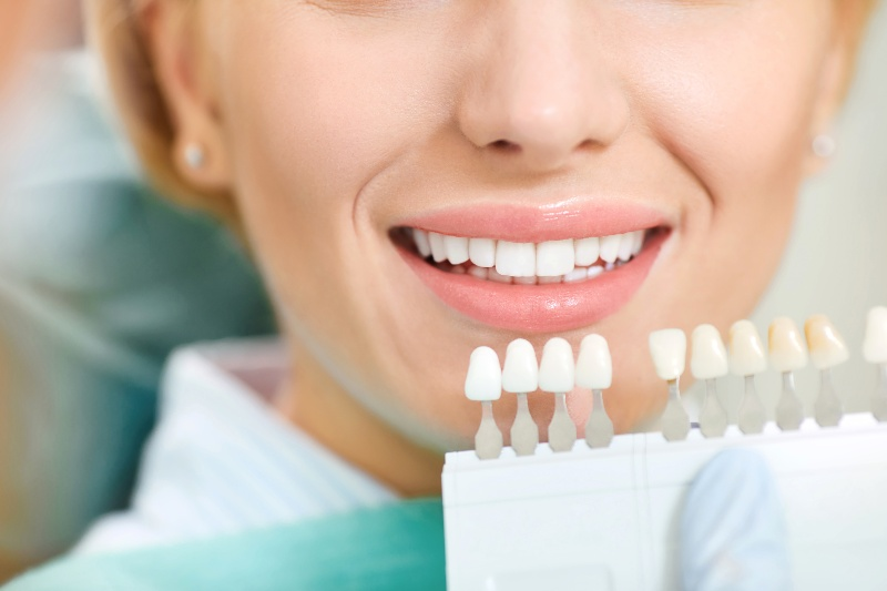 patient receiving teeth whitening treatment at Kissing Camels Family Dentistry