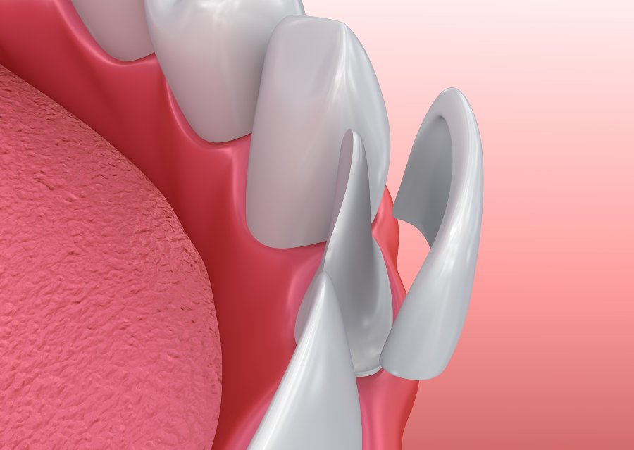 graphic of how veneers are fitted