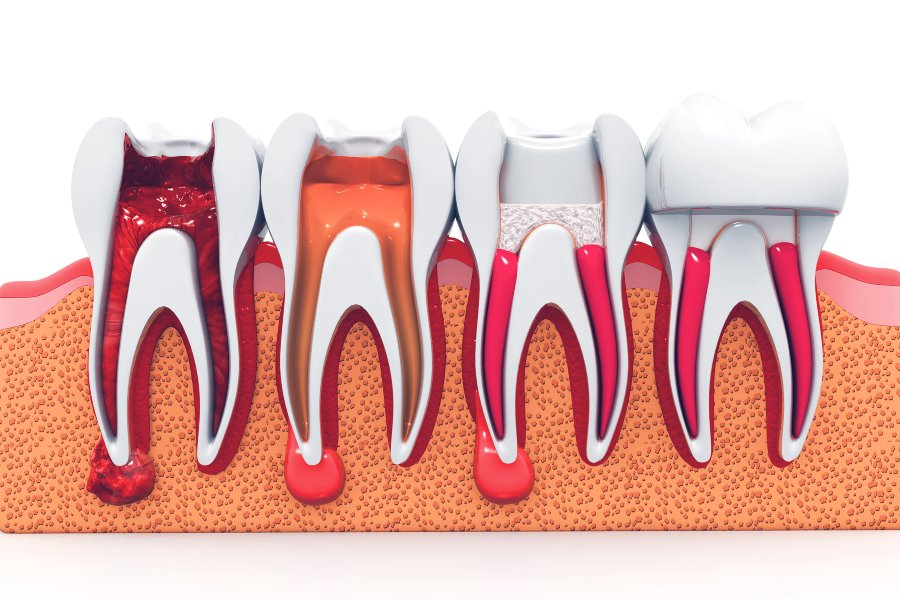 root canal therapy at kissing camels family dentistry