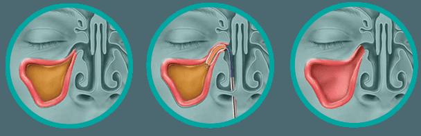 Balloon Sinuplasty Procedure