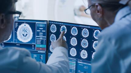 Warum wird der Hirntod als zuverlässige Todeskriterium angezweifelt?