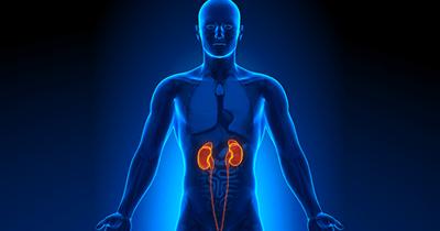 Kidney Stones & Treatment