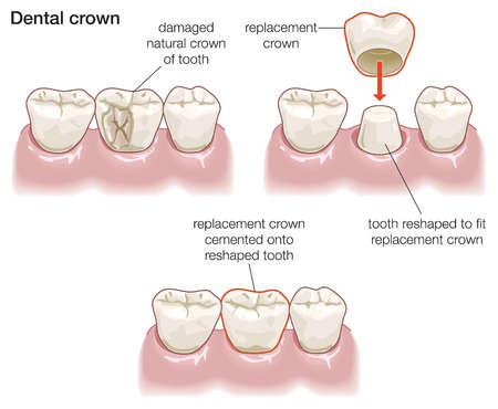 This image shows the process of getting a dental crown. First, the dentist removes the damaged part of the tooth. Then, the crown is placed over the reshaped tooth. Finally, the replacement crown is cemented onto the tooth.