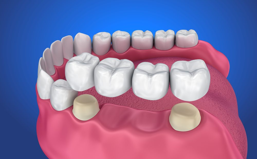 There are two missing teeth that will be replaced by pontics, the alternate teeth. They are attached via the two teeth on either side of the gaps.