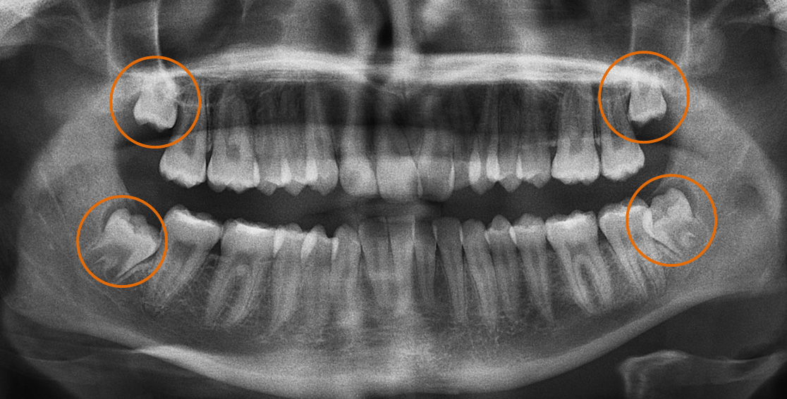 This x-ray shows four impacted wisdom teeth, one at each corner of the mouth. They are circled in orange to highlight them.
