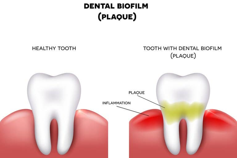 Two teeth are shown side by side. The tooth on the left is healthy and white. The tooth on the right has plaque on it, and the gums around it are inflamed.