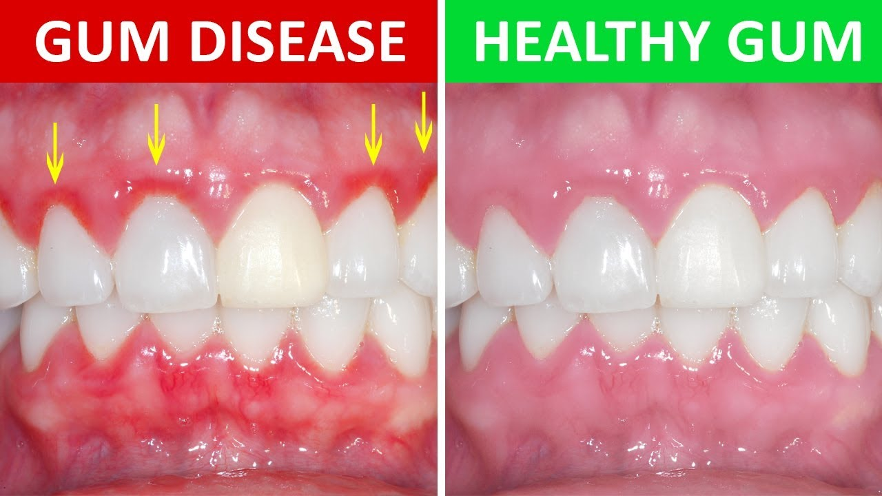 On the left side, someone's gums are shown, red and inflamed. On the right, the gums are pink and healthy.