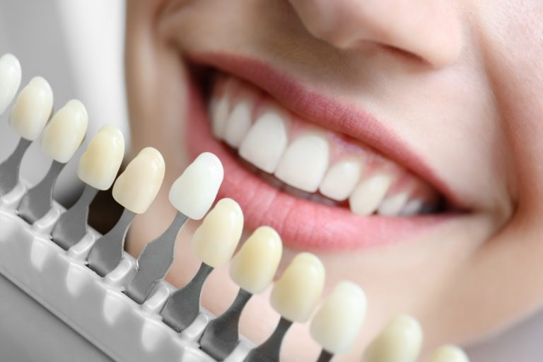 A woman smiles as she looks at the color options for her teeth.